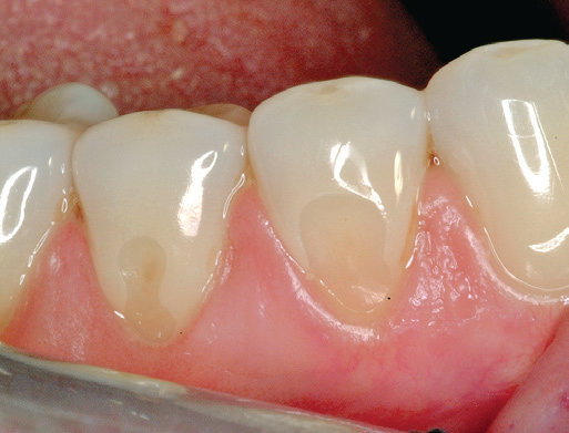 6A Reparatur sensibler zervikaler Läsionen am Zahn mit ACTIVA Material