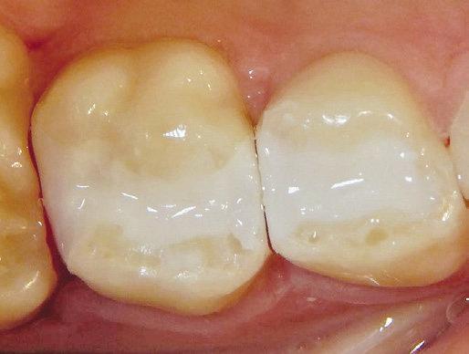 ACTIVA Kids Kariesversorgung 7D fertig restaurierter Zahn