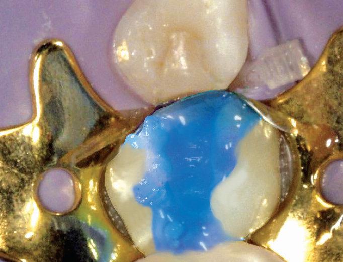 Bild des Ätzends eines Zahnes zur Füllungsvorbereitung