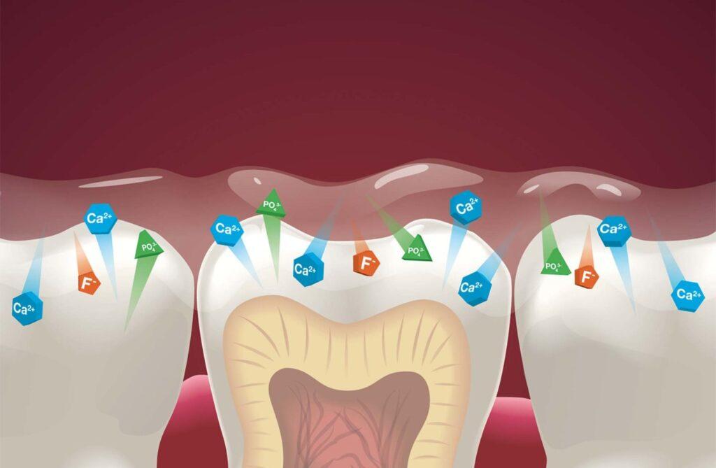 Grafik zeigt Ionenaustausch mit dem Zahn