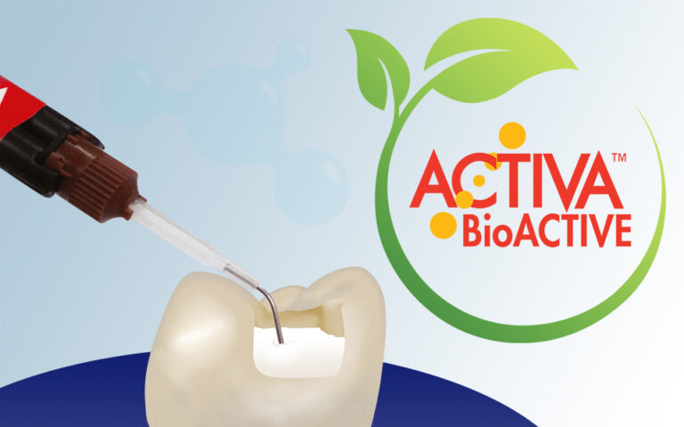 Pulpdent-BioActive-News1-Beitragsbild