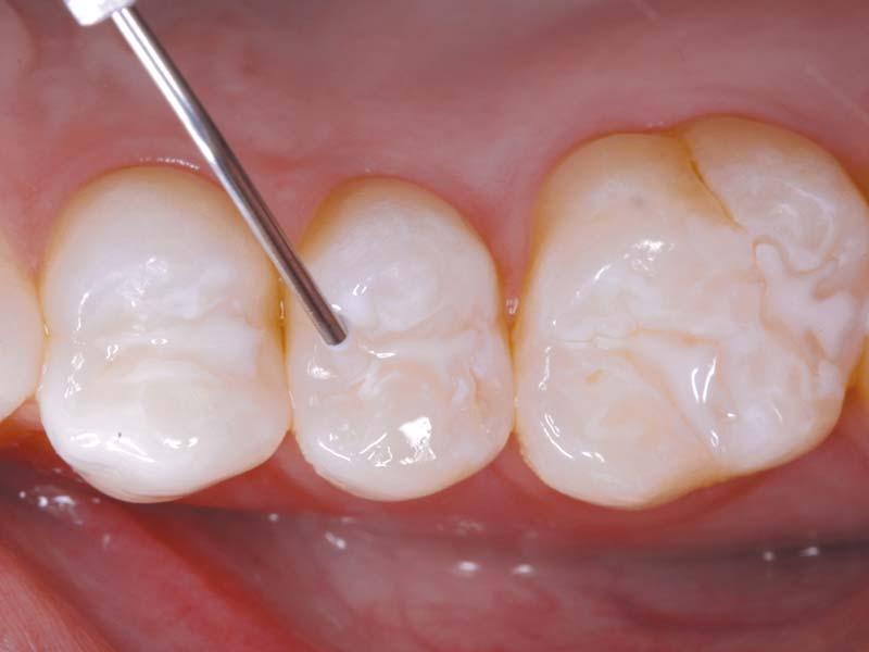 Applikation von EMBRACE Versiegelungsmittel auf den Zahn