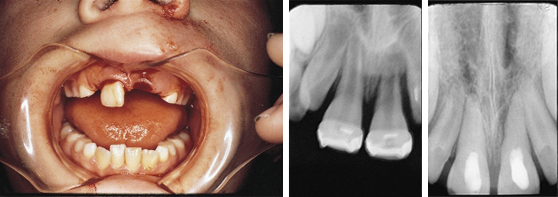 Bild und Röntgenbilder der Behandlung eines avulsierten Kinderzahnes
