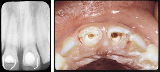 Bilder der Dentinbrückenbildung Fall 2 durch Benutzung von Pulpdent MultiCal