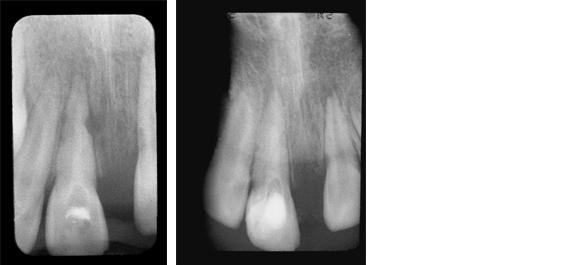 Röntgenbilder zu Hartsubstanzbildung nach traumatischen Zahnverlust