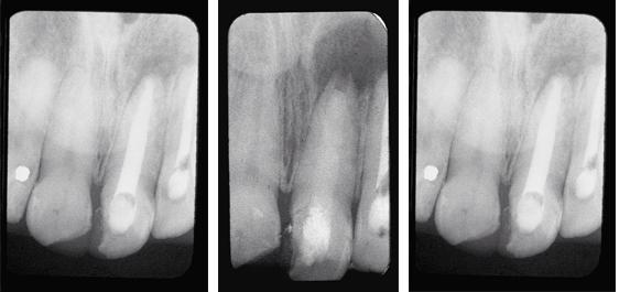Röntgenbilder persistierende periapikale Läsion
