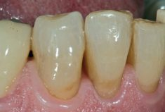 ACTIVA PRESTO unsichtbare ästhetische Zahnhalsrestauration